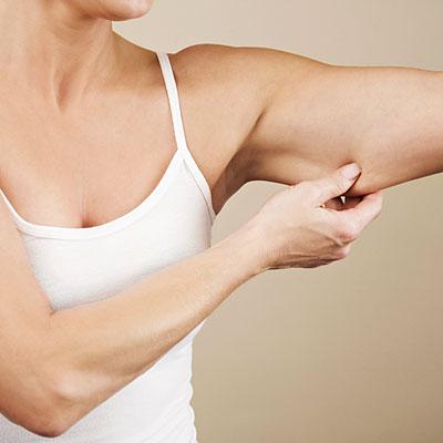 triceps_musculo_do_tchauzinho